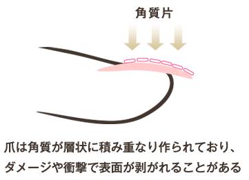 PCNキューティクルリムーバーを独自のネイルケアをしながら入れ込むことにより施術をしているその時から爪を修復・育成に導くことができます